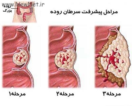 سرطان روده