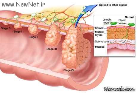 پیشگیری سرطان روده بزرگ