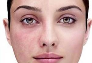 دلیل به وجود آمدن لک های تیره پوستی و درمان آن